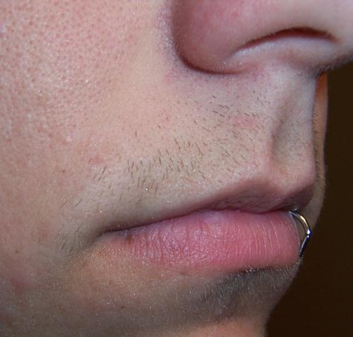 Facial hair and testosterone